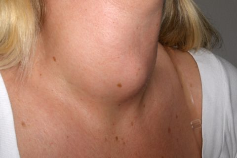 thyroiditis on a woman