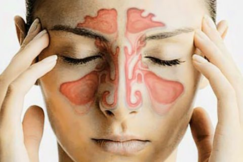 Woman with chart of sinuses imposed over her face