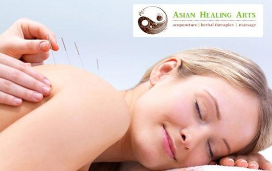 woman lying down getting acupuncture. image for Mary Maurer's practice