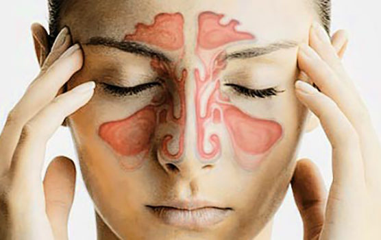 Woman with chart of sinuses imposed over her face while humming